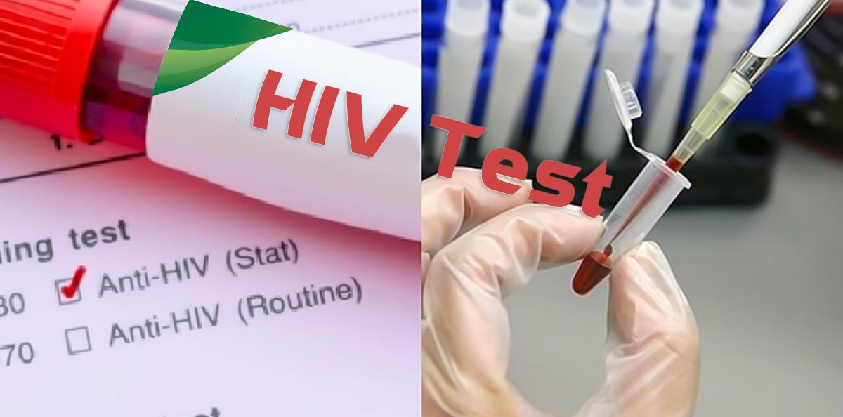 HIV/AIDS 16 dấu hiệu nhiễm bệnh cần biết - TRUNG TÂM XÉT NGHIỆM Y KHOA LIFE